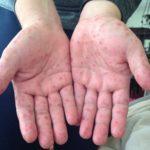 EN AGUASCALIENTES NO EXISTE ALERTA EPIDEMIOLÓGICA POR VIRUS DE COXSACKIE